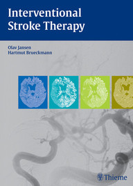 Interventional Stroke Therapy
